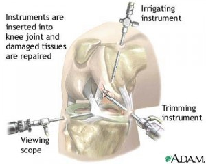 arthroscopic-instruments