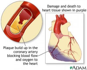 heart-damage