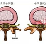 herniated_disc