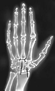 palm-bones-xray