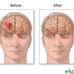subdermal-hematoma