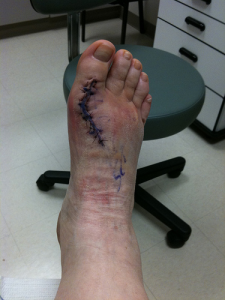 heal-fast-from-foot-surgery-rodrigue-beaubois-photo