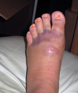 how-to-treat-a-bruised-foot-aaron-harang-photo